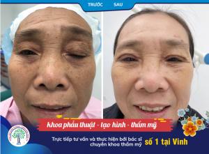 Điều trị hiệu quả sụp mí mắt ở người cao tuổi
