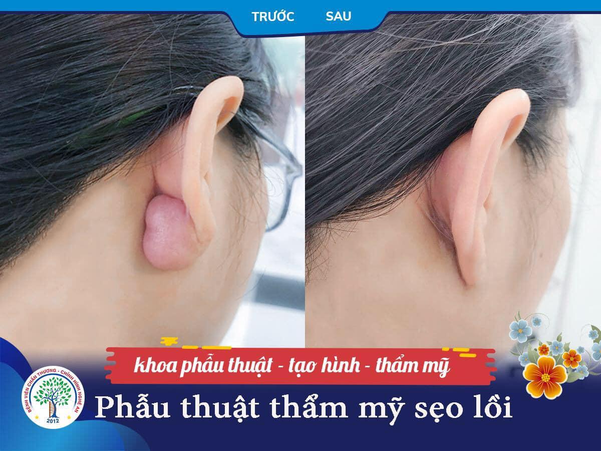 Phẫu thuật sẹo lồi lâu năm ở vành tai