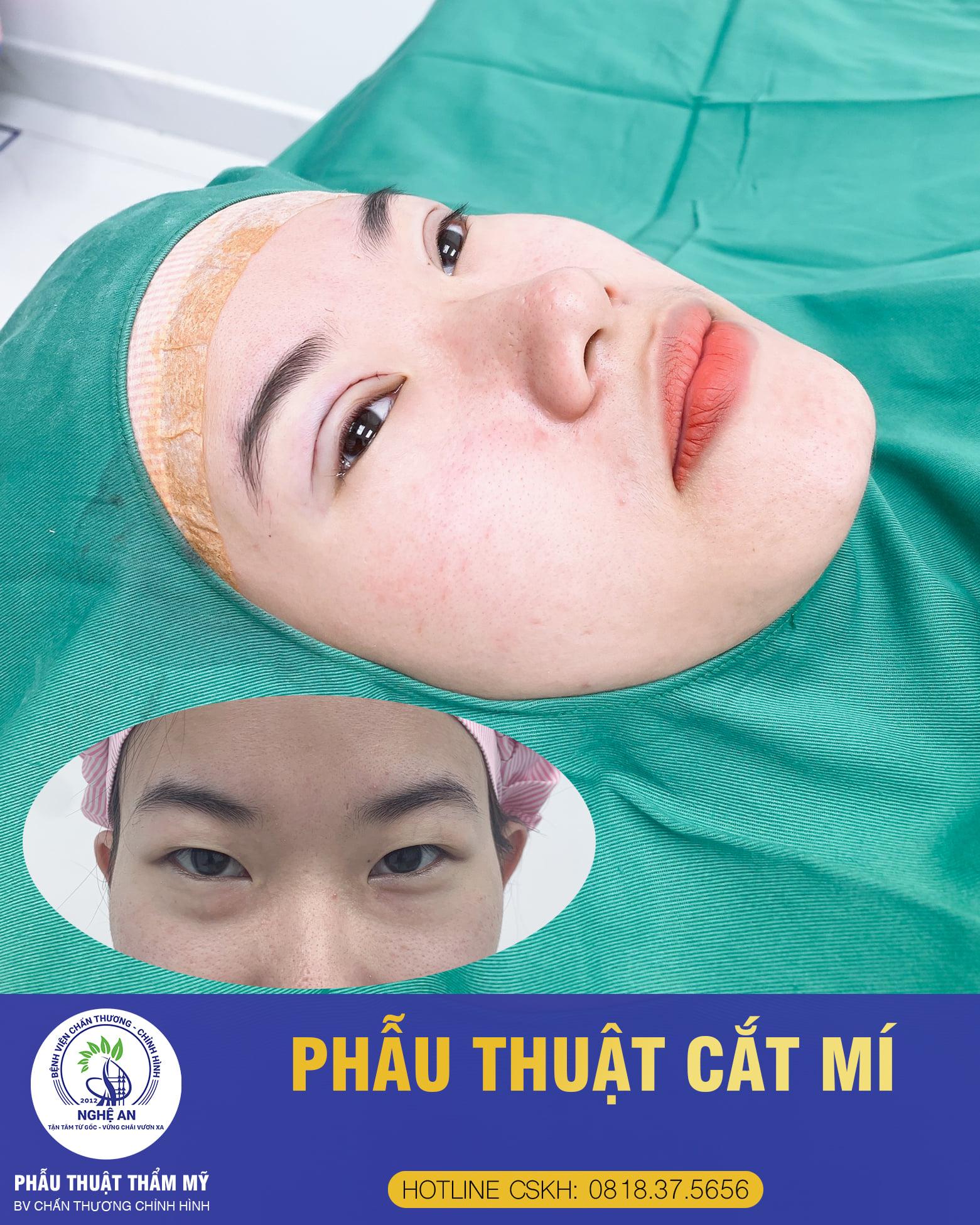 Phẫu thuật tạo hình mắt 2 mí
