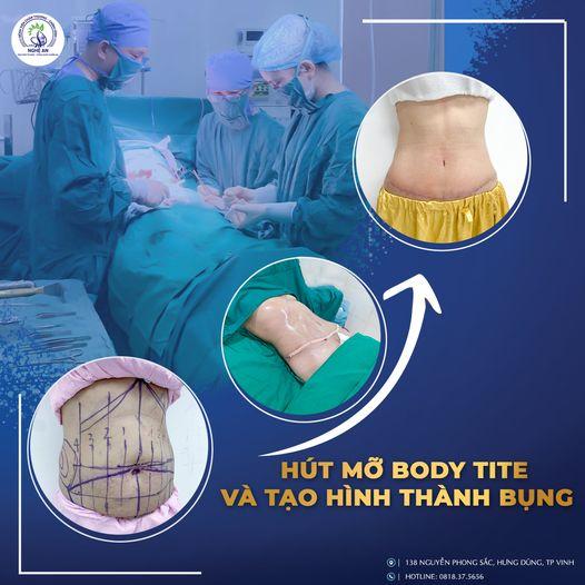Quy trình ca phẫu thuật hút mỡ vào tạo hình thành bụng